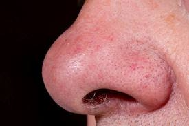 Count the nostril hairs, now... Image: medicalobserver.com.au